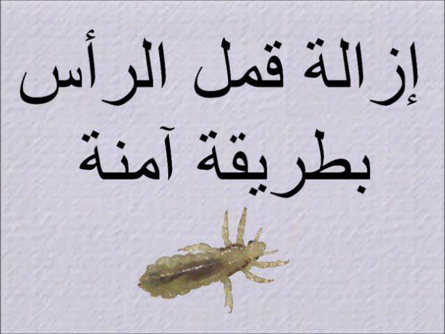Removing Head Lice Safely (Arabic) إزالة قمل الرأس بطريقة آمنة